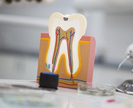 Model of inside of the tooth