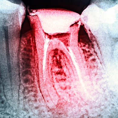 X-ray of root canal treated tooth highlighted red