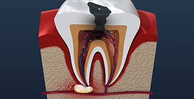 Model of damaged tooth