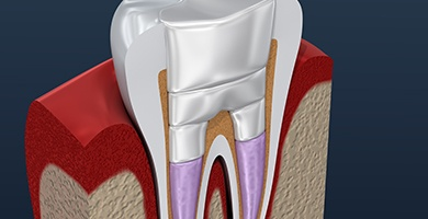 Animation of inside of tooth after retreatment